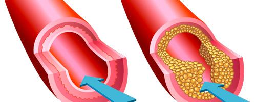 arteriosklerose_deposit_500x200.jpg